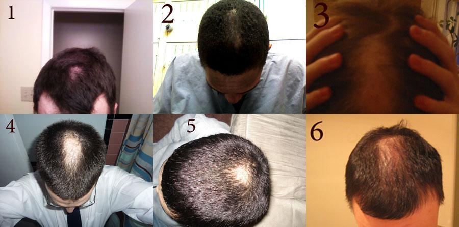 Headspin Baldspot